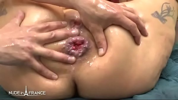 Prolapse, Mature anal, Bbw mature, Bbw anal, Anal squirt, Mature french