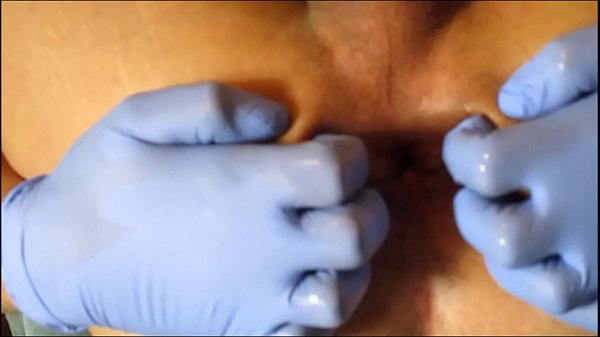 Prolapse, Anal gape, Gaping, Wide open, Open